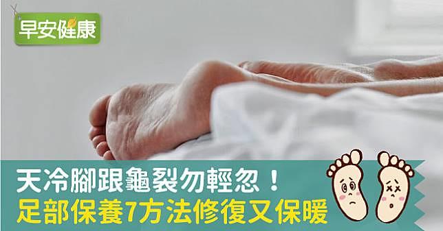 天冷腳跟龜裂勿輕忽!足部保養7方法修復又保暖