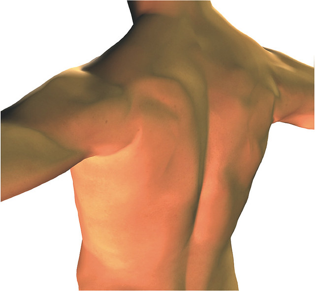 頸部後方、肩膀和背部等的痠痛和疼痛,是顳顎關節症候群中經常出現的症狀。