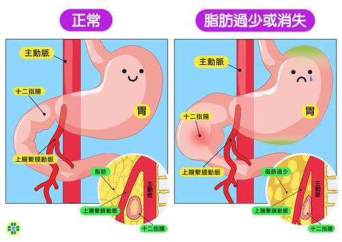 上腸繫膜動脈症候群