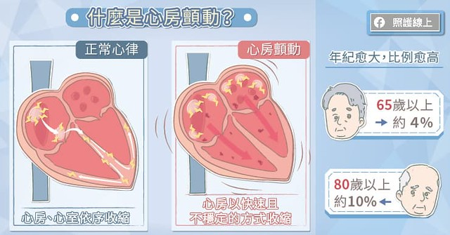 心房顫動是什麼