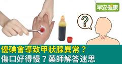 優碘會導致甲狀腺異常?傷口好得慢?藥師解答迷思
