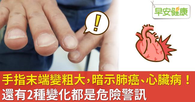 手指末端變粗大,暗示肺癌、心臟病!還有2種變化都是危險警訊