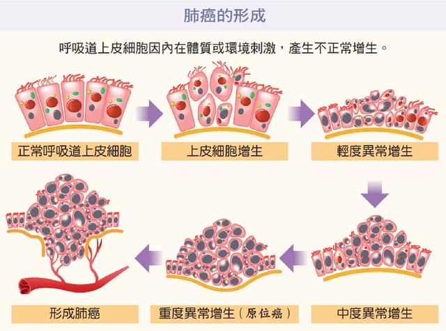 肺癌的形成