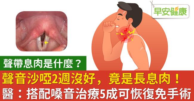 聲音沙啞2週沒好,竟是長息肉!醫:搭配嗓音治療5成可恢復免手術