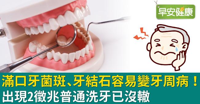 滿口牙菌斑、牙結石容易變牙周病!出現2徵兆普通洗牙已沒轍