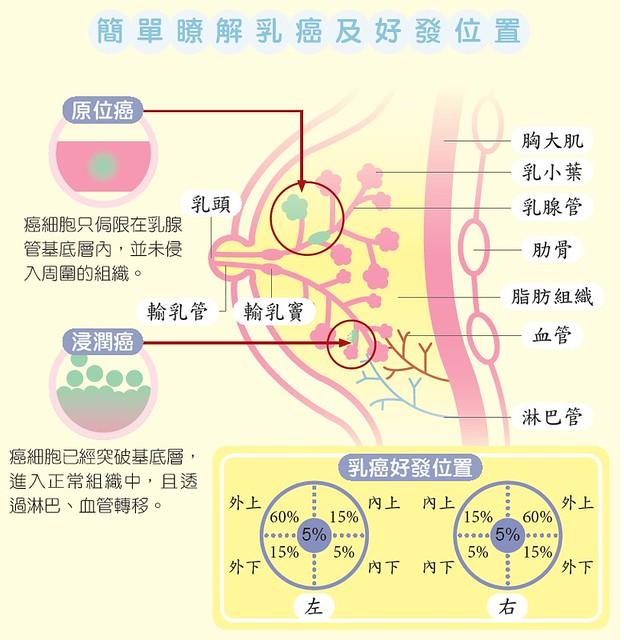 簡單瞭解乳癌及好發位置