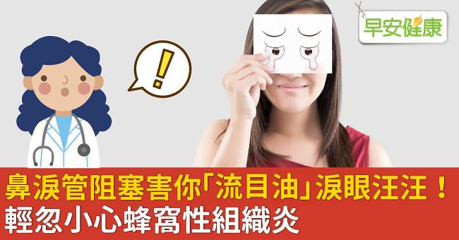 鼻淚管阻塞害你「流目油」淚眼汪汪!輕忽小心蜂窩性組織炎