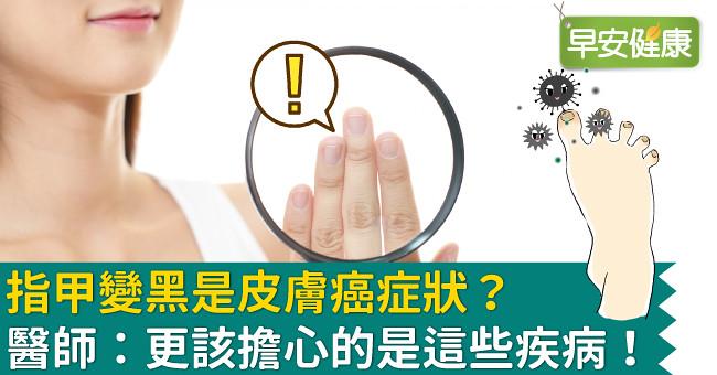 指甲變黑是皮膚癌症狀?醫師:更該擔心的是這些疾病!