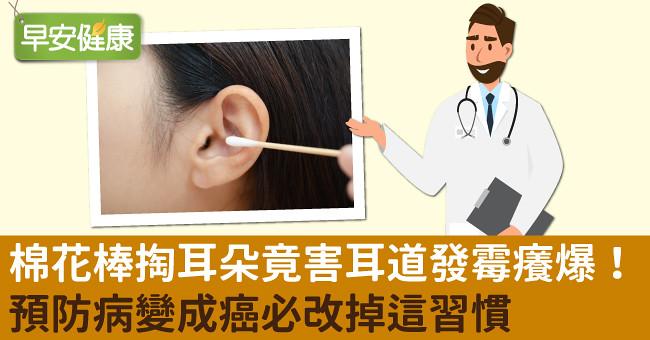 棉花棒掏耳朵竟害耳道發霉癢爆!預防病變成癌必改掉這習慣