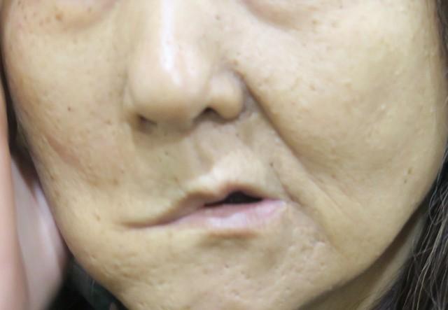 腮腺腫瘤如果大到壓迫或侵犯顏面神經,便會造成顏面失調