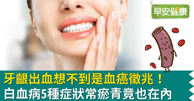 牙齦出血想不到是血癌徵兆!白血病5種症狀常瘀青竟也在內