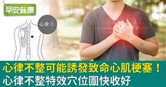 心律不整可能誘發致命心肌梗塞!心律不整特效穴位圖快收好