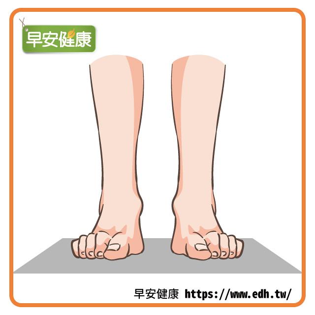 伸展腳趾預防浮趾病