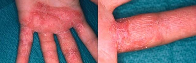 過敏性接觸性皮膚炎