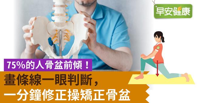 75%的人骨盆前傾!畫條線一眼判斷,一分鐘修正操矯正骨盆