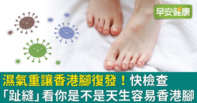 濕氣重讓香港腳復發!快檢查「趾縫」看你是不是天生容易香港腳