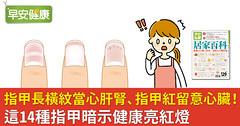 指甲長橫紋當心肝腎、指甲紅留意心臟!這14種指甲暗示健康亮紅燈