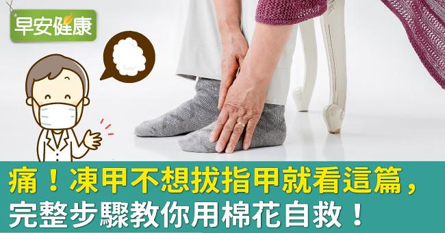 痛!凍甲不想拔指甲就看這篇,完整步驟教你用棉花自救!