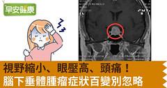 視野縮小、眼壓高、頭痛!腦下垂體腫瘤症狀百變別忽略