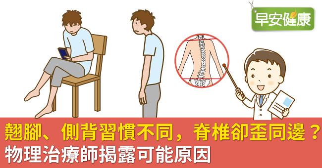 翹腳、側背習慣不同,脊椎卻歪同邊?物理治療師揭露可能原因