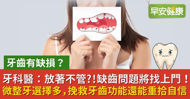 牙齒有缺損?牙科醫:放著不管?!缺齒問題將找上門!微整牙選擇多,挽救牙齒功能還能重拾自信