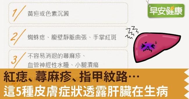 紅痣、蕁麻疹、指甲紋路…這5種皮膚症狀透露肝臟在生病