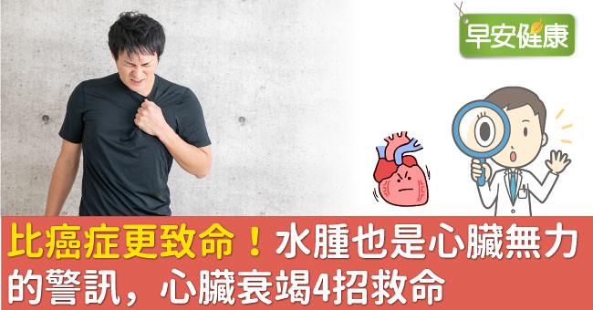 比癌症更致命!水腫也是心臟無力的警訊,心臟衰竭4招救命